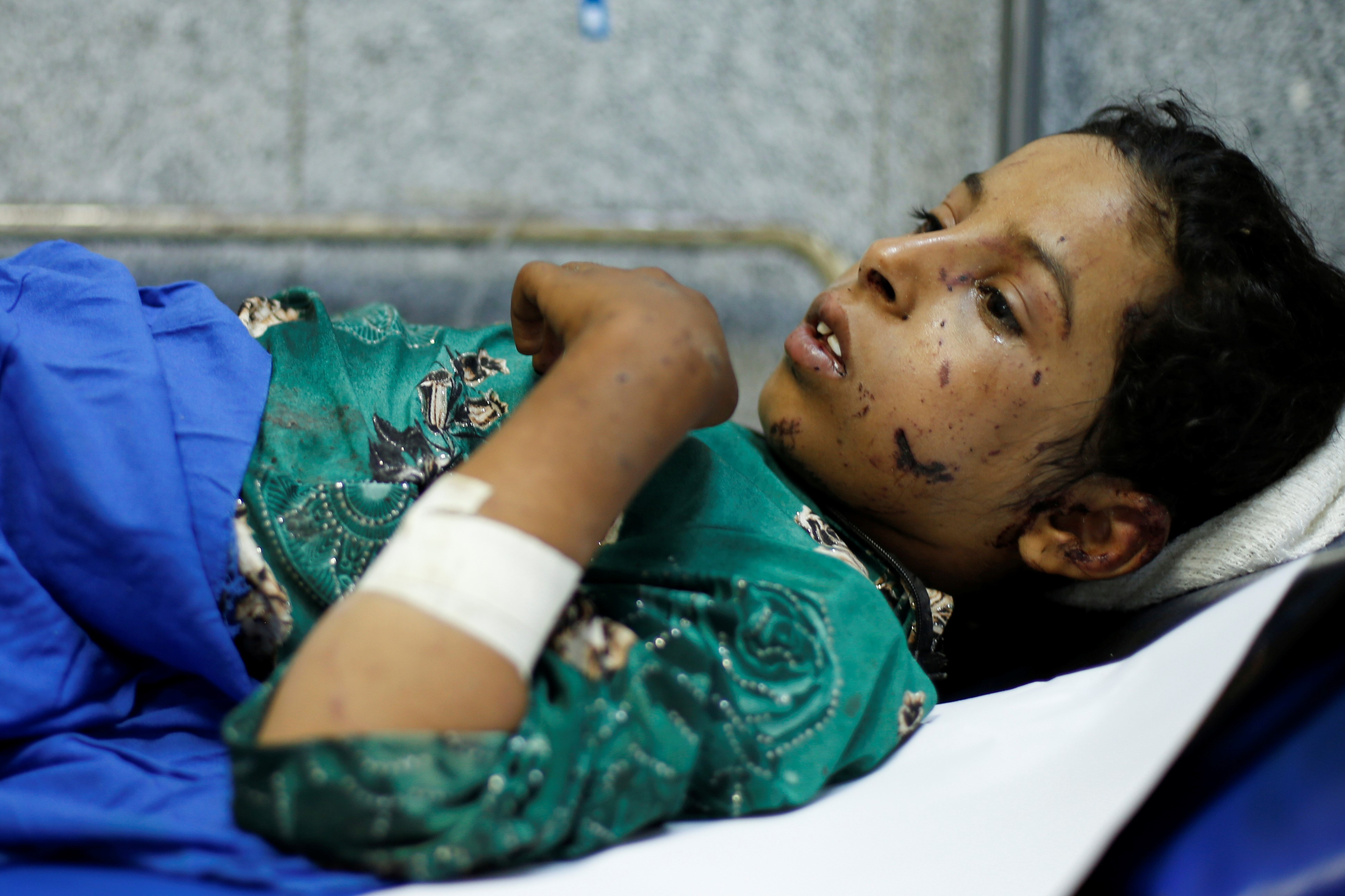 Qaboul Mabkhout Marzouq, 11, lies on a stretcher at a hospital in Sanaa after she was injured in an air strike in the northern province of al-Jawf, Yemen on 15 July, 2020 (Reuters)