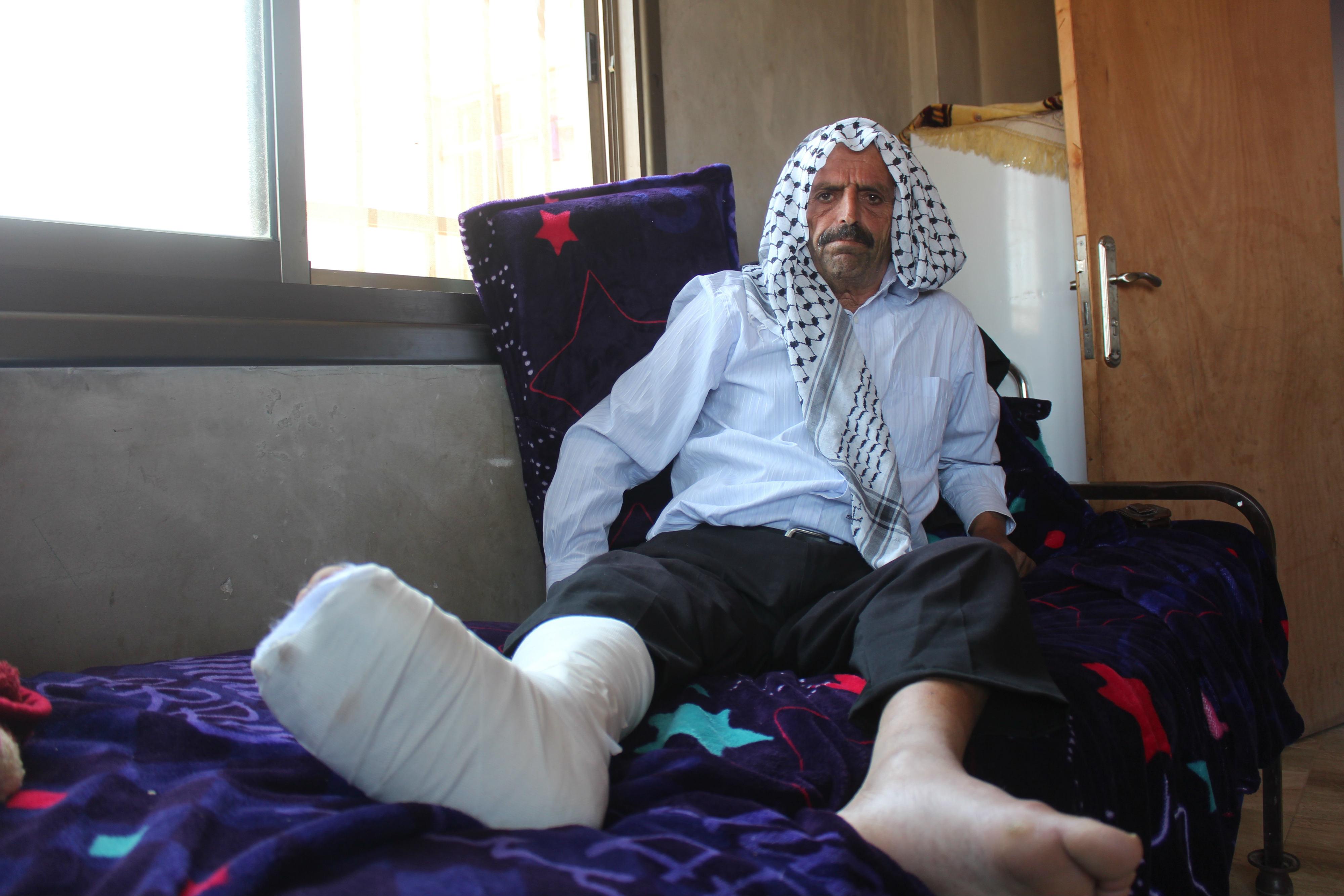 Kamal Abdullah al-Naasan rests his broken foot following a settler attack (MEE/Shatha Hammad)