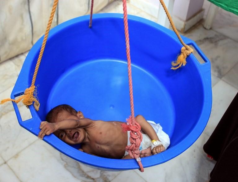 yemen war, malnourished baby