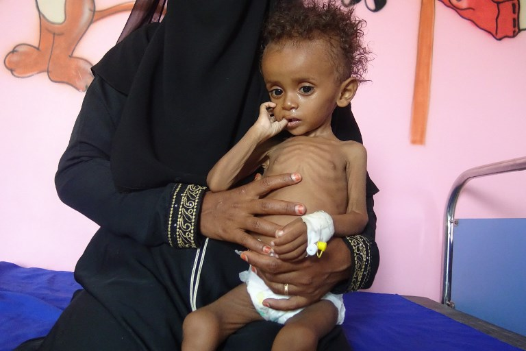 About 20 million Yemenis food insecure amid war, UN agencies say