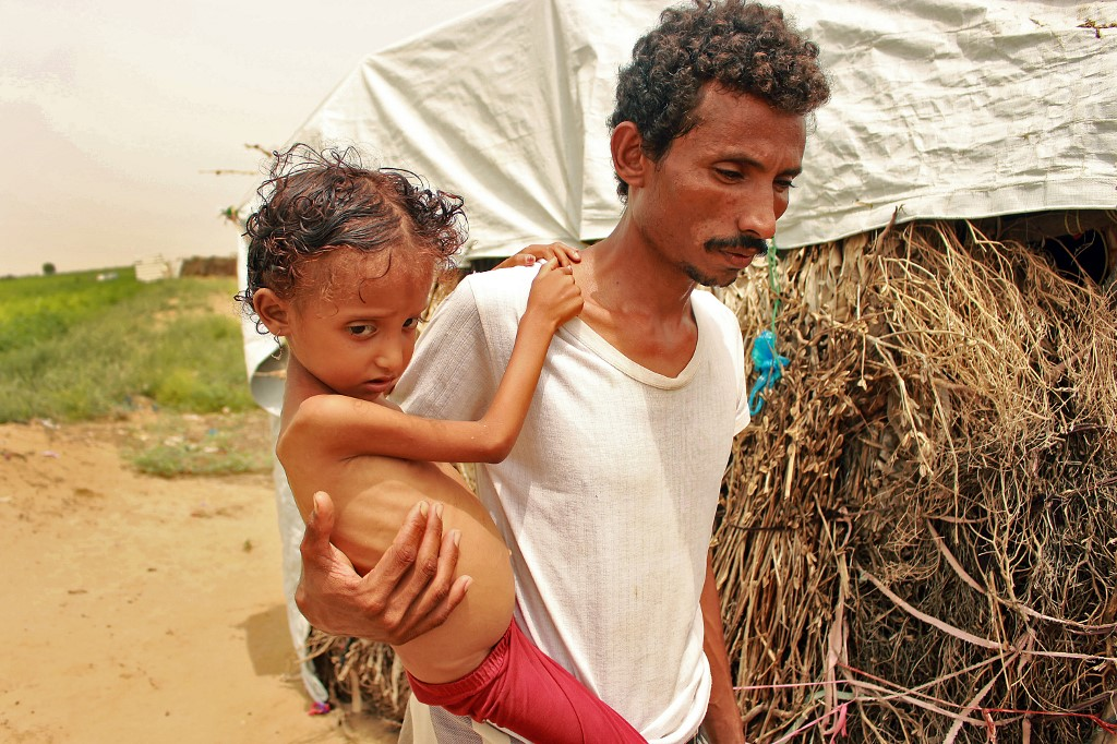 A malnutritioned child is carried by her father in northern Yemen on 23 September (AFP)