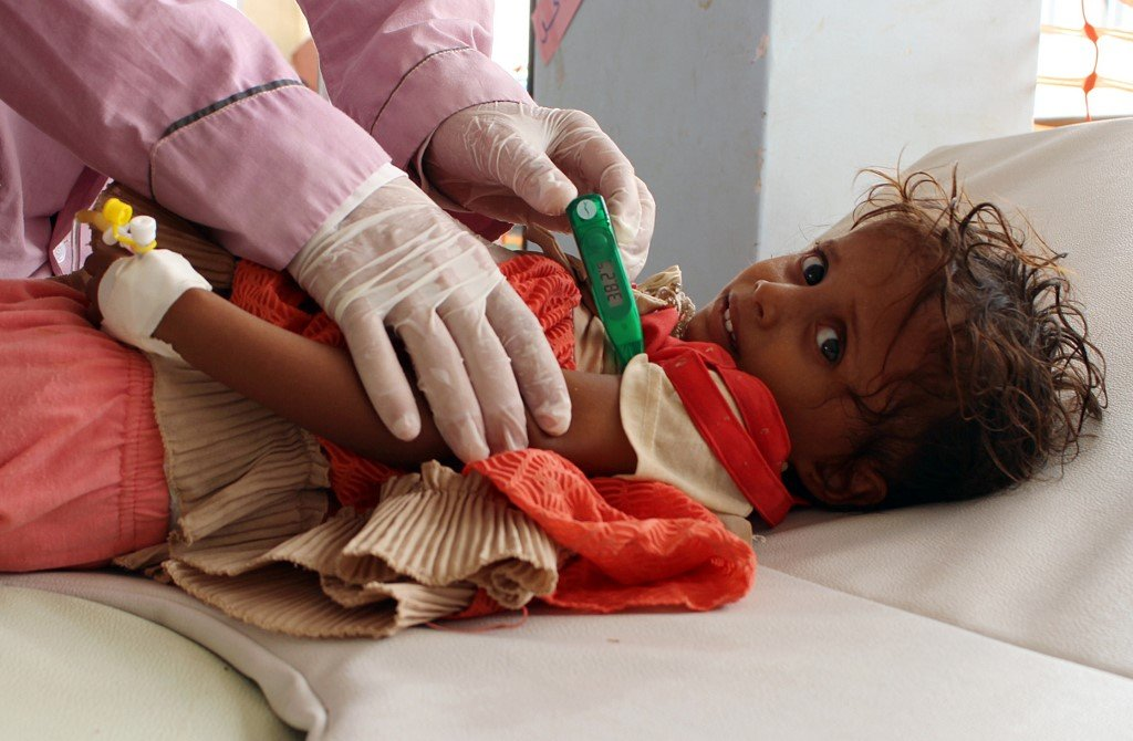 A Yemeni child suspected of being infected with cholera is checked by Doctors Without Borders (MSF) in a makeshift hospital in Hajjah in July 2017 (AFP)